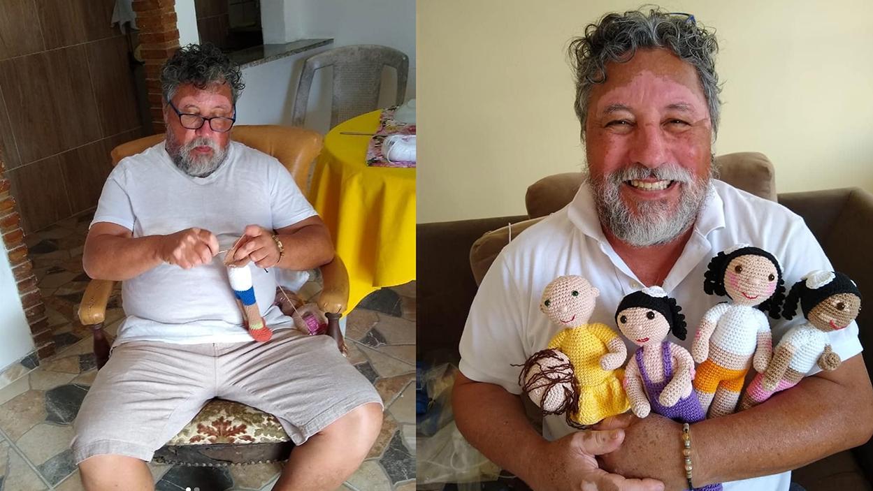 João Stanganelli Junior Creates Vitiligo Dolls