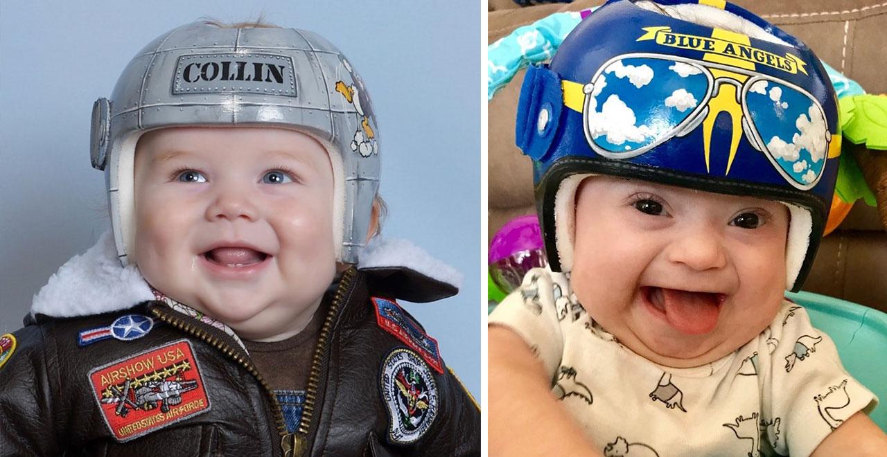 Artist Turns Infant Medical Helmets Into Works of Art