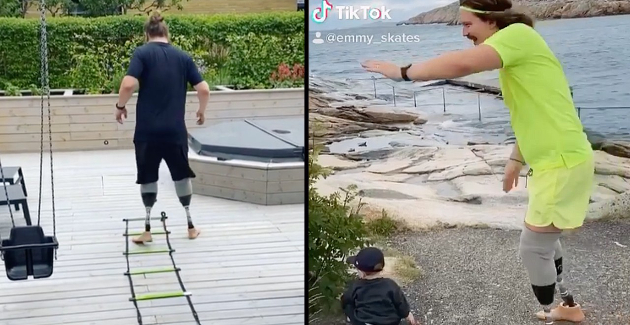 Dad has legs amputates so he can run around with his son