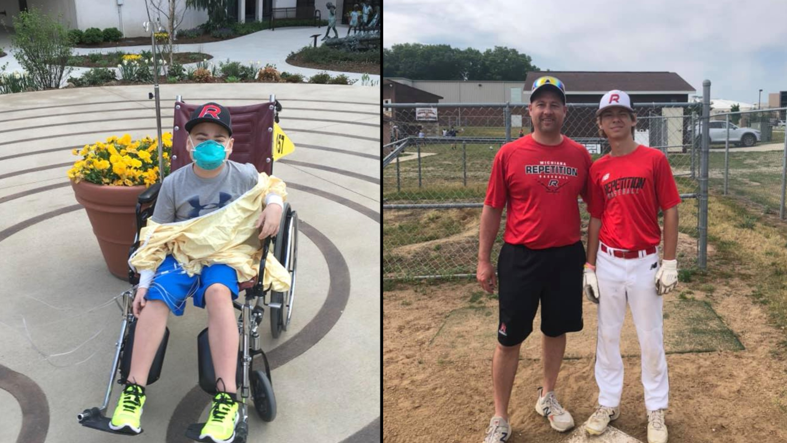 Dad donates kidney to son