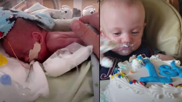 World's most premature baby celebrates first birthday